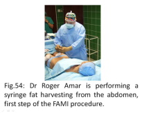 FAMI the surgery